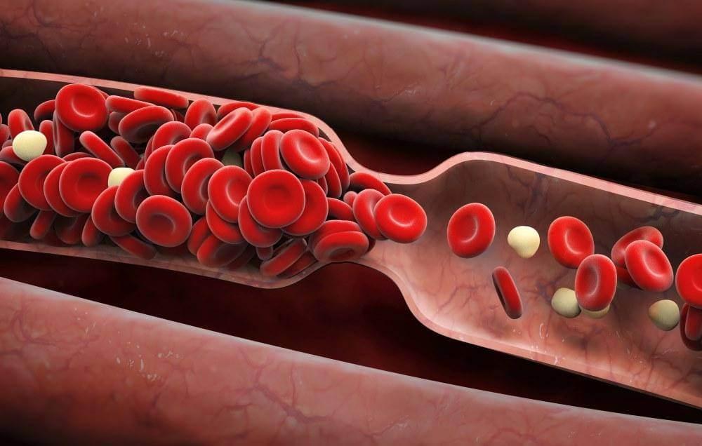 سرطان خون چیست؟ تشخیص و درمان سرطان خون